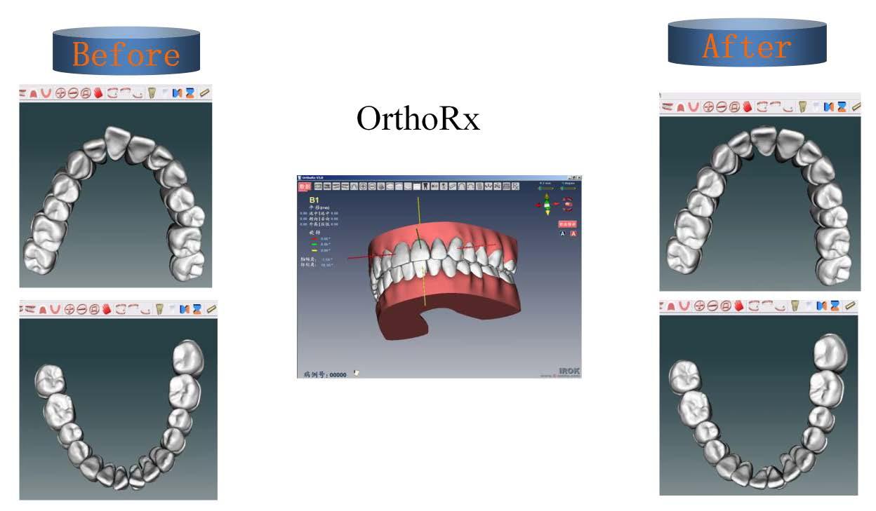 תוכנת תלת-מימד OrthoRx